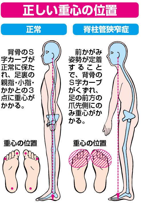 痺れ 両足 の